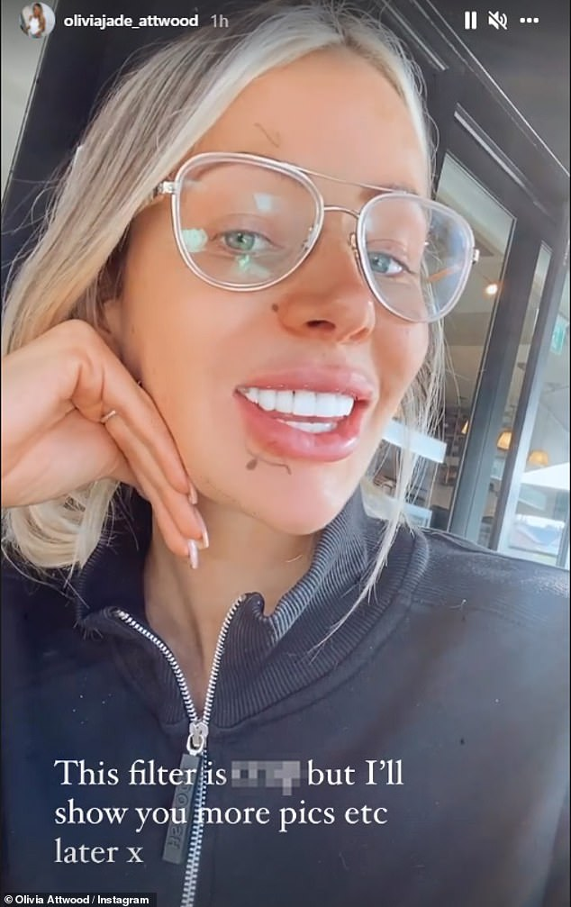 Smiles: The radiant pictures shared via her stories did indeed show the results of her dental procedure