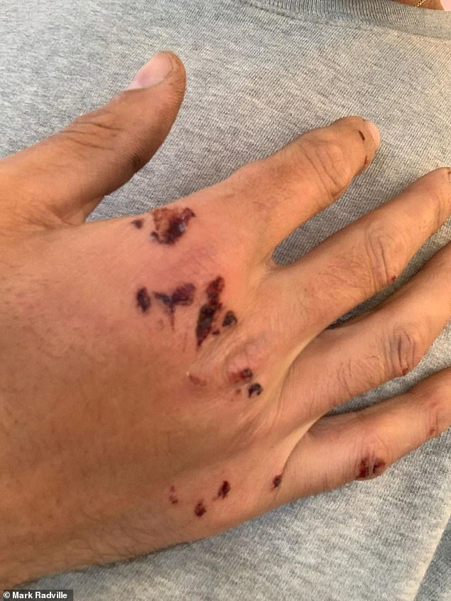 Cuts to Mr Radville's right hand after he was rammed off his bicycle outside Richmond Park