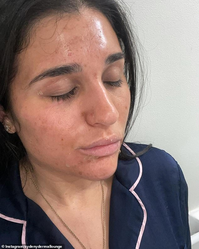 The client originally had dull skin, redness and breakouts across her cheeks, nose and forehead, but the facial helped nourish the skin and bring it back to life after months of being stuck at home in lockdown