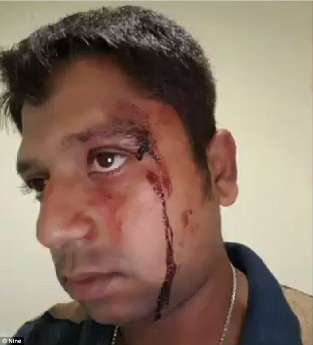 An Uber driver (pictured) was allegedly attacked up to 15 times by an angry passenger while he was 'just doing his job