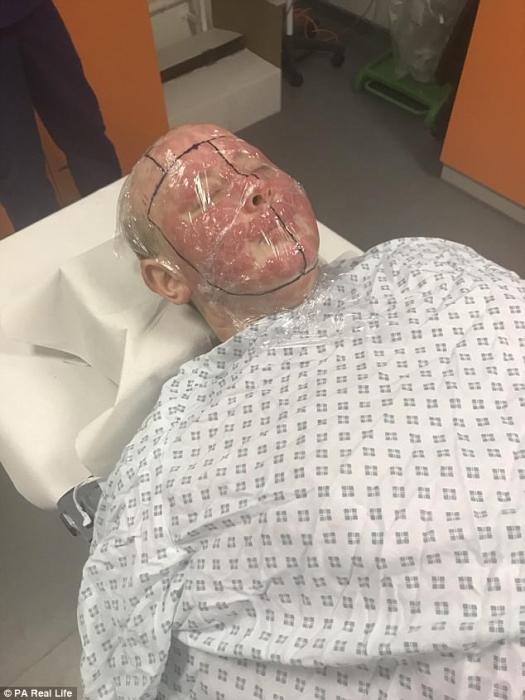 Aunque, los médicos advierten que ella está demasiado enferma para seguir con el procedimiento, actualmente, aunque se haya encontrado un donante (en la foto durante la radioterapia de la cara)