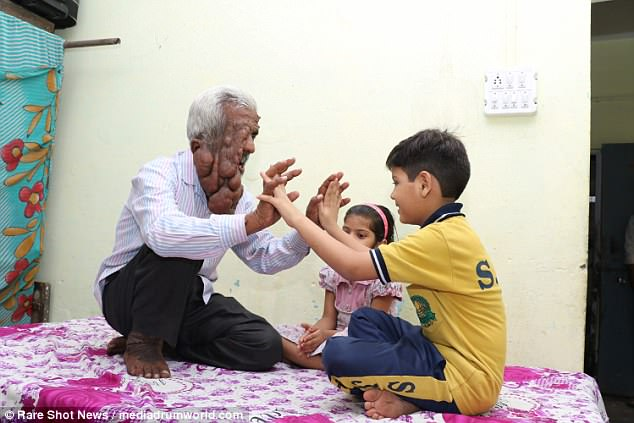 Determined to stay positive, Mr Chand enjoys playing with his grandchildren, who 'accept' him
