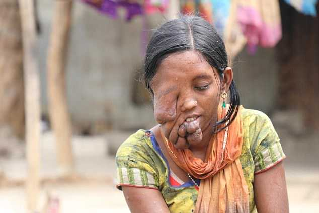 Her own father abandoned her after being  ashamed of his daughter's disfigurement