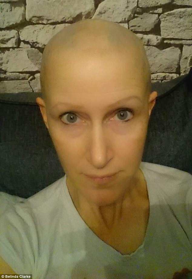 Belinda Clarke, 44, from Wiltshire has suffered from alopecia most of her life, going through phases where she's been completely bald