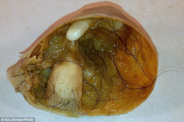 Dermoid cysts develop from embryonic cells that can develop into any kind of tissue, including teeth, skin and hair, earning the growths the name 'teratoma' or little monster (file image