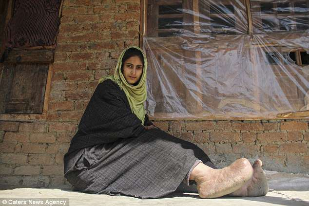 Tawheeda Jan, 21, has suffered from elephantiasis in her feet for her whole life
