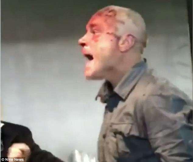 Eine heftige Schlägerei brach zwischen Männern in Anzügen aus, die zwei rivalisierende AFL-Fußballvereine in Melbourne unterstützten. Ein verletzter Mann (im Bild) wurde gefilmt und mit Blut im Gesicht durch den Raum geschrien