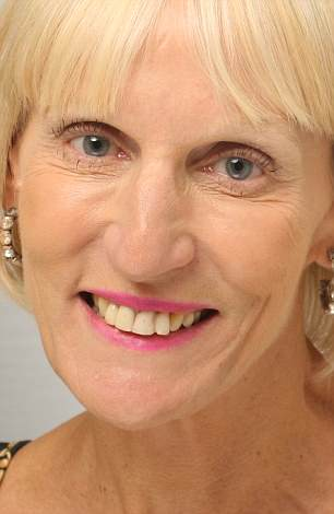 Alyson Stratford-Wood, 62,needed one front tooth removing, a bone graft and a gum lift