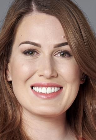 Carly Taylor, 29, had treatment for her gums because one side was slightly lower than the other