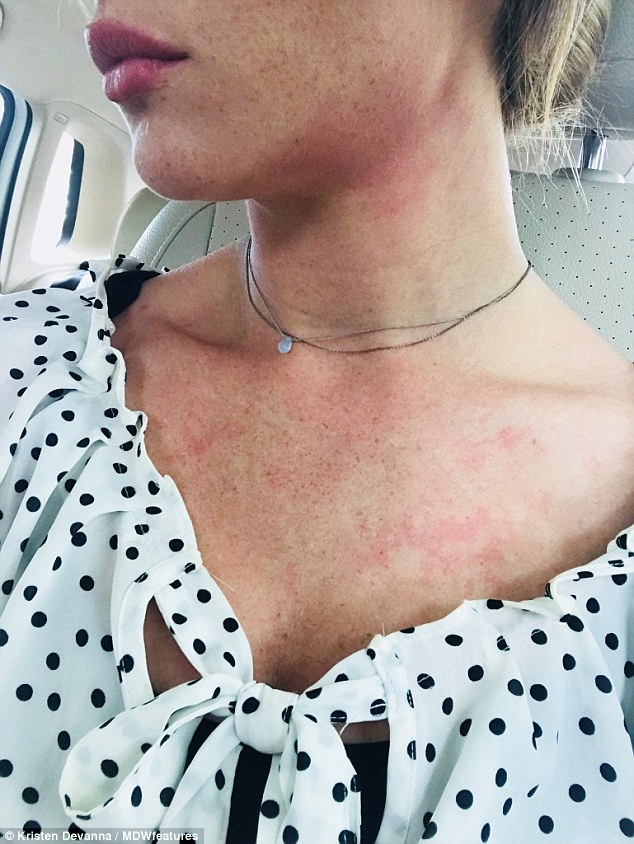 Other side effects ofHashimoto's include sufferers' skin becoming inflamed (pictured)