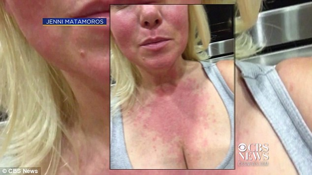 Residents of Rancho Cordova have reported an outbreak of unexplained rashes that appeared last weekend as several fires broke out in the area, Jenni Matamoros shows her rash stretching from her face to neck above