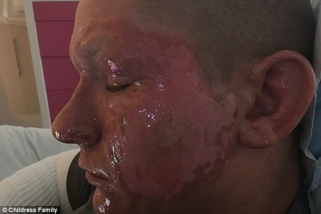 Horrific burns: Alex Childress was left with burns all over his face after touching the plant
