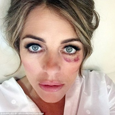 Conspiracy theorists have come up with a bizarre reason for why celebrities have sported black left eyes. Elizabeth Hurley shared a snap of herself with bruising in 2017