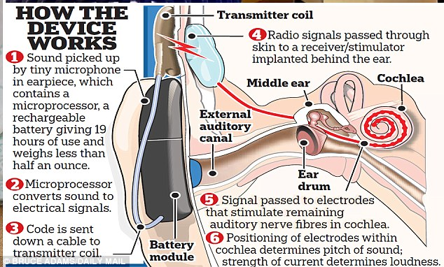 Cochlear implants (pictured) are electronic devices which perform the same action as the inner ear, or cochlea, and transmit sounds through the auditory nerve to the brain