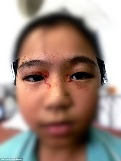 Doctors believe the unnamed 11-year-old has hematidrosis, a phenomenon poorly understood by science because of its rarity