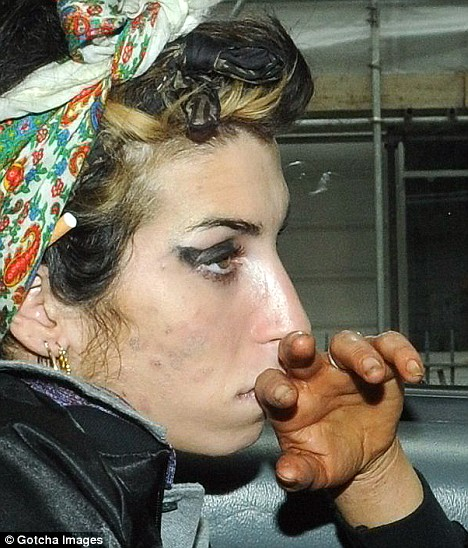 Amy Winehouse- scary pic- Amy Winehouse