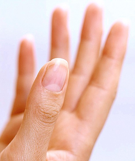 Example of a normal lunula in a female thumb.
