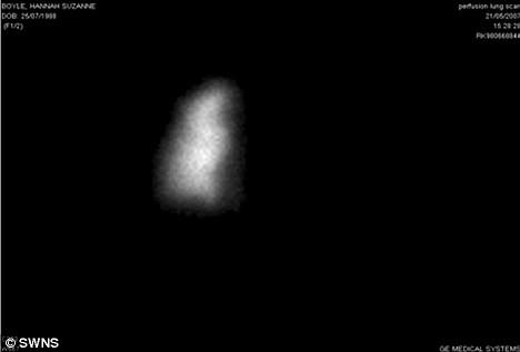 X-ray Hannah Boyle