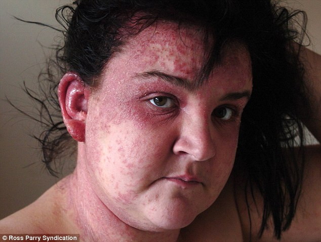 Hair Dye Nightmare Leaves Womans Face Covered In Blisters
