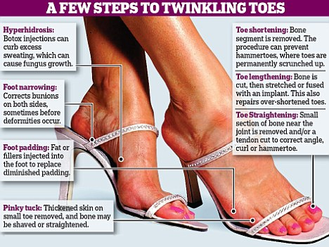 twinkling toes