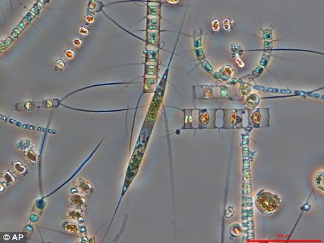 Marine diatom cells (Rhizosolenia setigera), which are an important group of phytoplankton in the oceans. Much of life on Earth depends on these tiny creatures which are now in massive decline