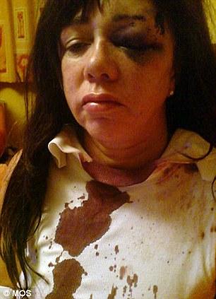 Pamela after the assault