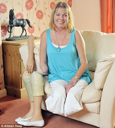 Harsh truth: Jane Knight has lost an arm and both legs because she failed to manage her diabetes when she was younger
