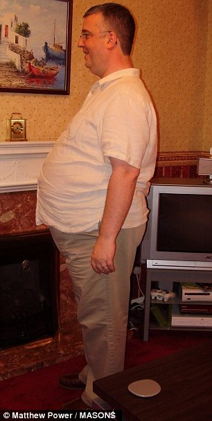 Tim Daily from Buckinghamshire before he had a a gastric bypass operation
