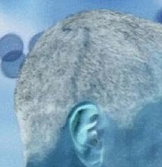 This enhanced image purports to show the scar running from the top of the President's head to behind his right ear