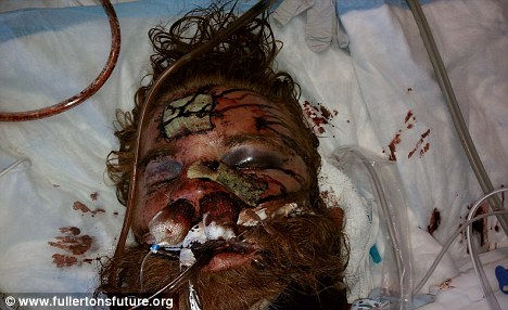 Shocking: This picture shows the extent of the injuries Thomas received after being beaten up by six police officers