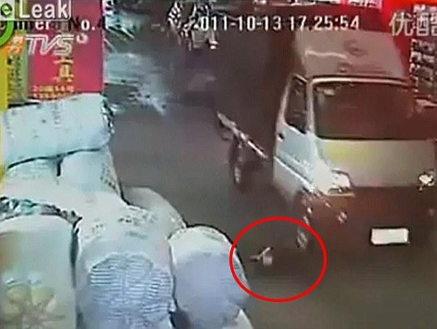 Lesiones: La niña está afectada por la furgoneta, que no deje de salir de su tendido en el suelo