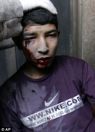 A protester injured during clashes with military police