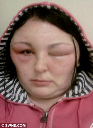 Carmen Rowe Hair Dye Pictures Show Swollen Face Of Woman