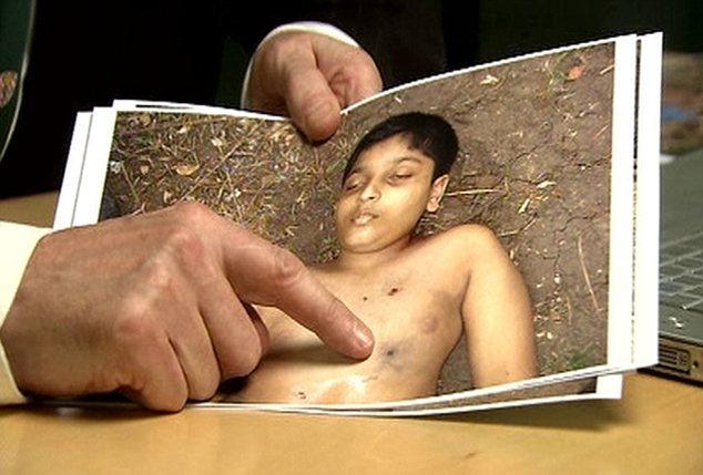 Bullet marks on the body of Prabakaran's child.