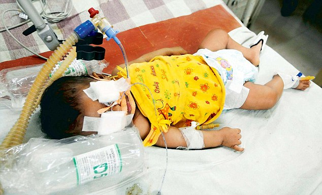 Afreen: battred baby in Bangalore hospital