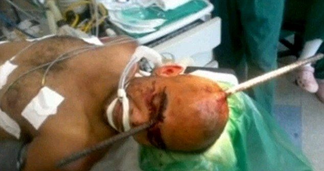 Horrific: The metal bar went through the worker's hard hat, into his skull, and out between his eyes