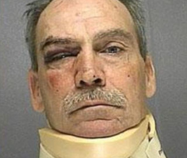 Louis Bray Pictured Was Arrested On Child Abuse Charges After Being Beaten Up By A Teenage Girl In A Fight Over A Phone