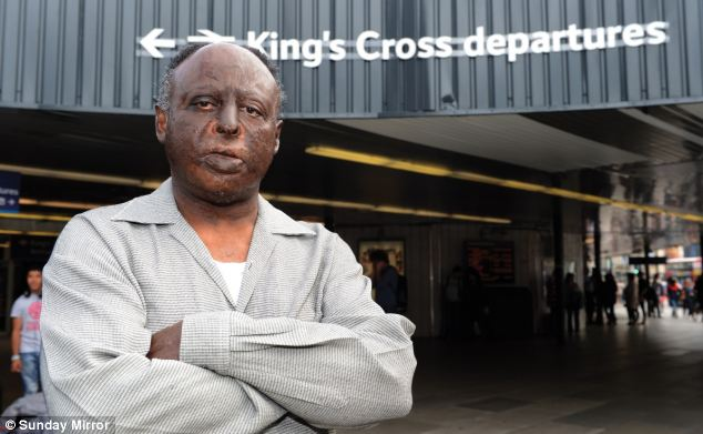 The 58-year-old, pictured, had to spend six months in hospital while his face was rebuilt after the horrifying incident at King's Cross station