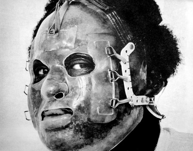 The King's Cross fire victim had to wear a medical mask to help skin grafts and treatment of his melted face after he was severely burnt