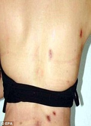 Wounds: The ex-mayor was lucky to survive the attack. She was left in constant pain and was forced to use a colostomy bag