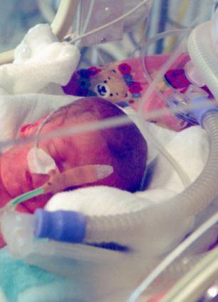 """Un médico ha escrito un testimonio publicado bajo el título: """"¿Cómo se siente al retirar la alimentación de los recién nacidos"""""""
