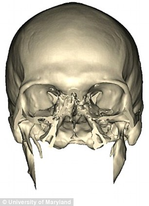 Rebuilding process: Mr Norris's skull after his accident (left) and as surgeons began to piece it back together (right)