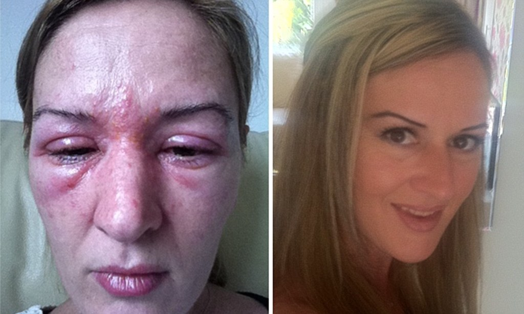 Woman Who Suffered Extreme Allergic Reaction To Eyelash