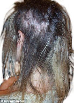 Dangers Of Hair Extensions Blinding Headaches To Bleeding
