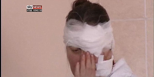Wounded: This woman suffered cuts across her face when the sonic boom of the meteor sent broken glass flying