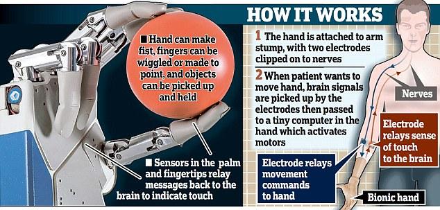 bionic hand graphic.jpg