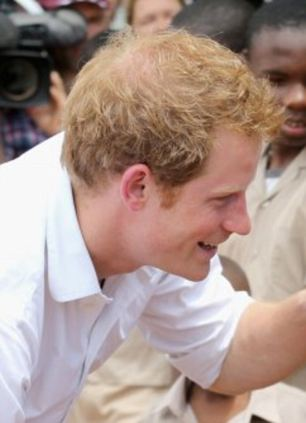 Prince Harry Is Going Bald Just Like His Brother Says