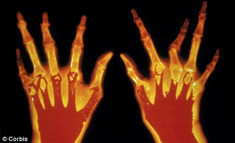 Rheumatoid arthritis is a crippling condition that causes extreme pain and in some cases deformity