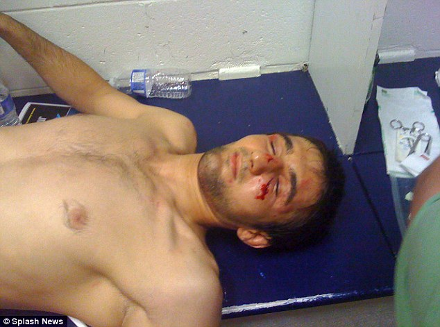 Ibragim Todashev is pictured in 2009 with injuries from boxing at the Massachusetts gym where Boston bombing suspect Tamerlan Tsarnaev trained