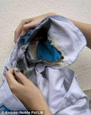 The exploding phone caused a fire in Miss Schlatter's trousers, pictured, that then spread to her shoulders